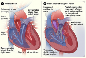 Image credit National Heart, Lung and Blood Institute The difference between a normal heart and one with tetralogy of Fallot