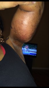 Submitted the photo After a miscarraige about two and one-half years ago, neurofibromatosis helped caused Tracey's body, flooded with hormones, to grow a tumor on her left arm.
