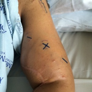 Submitted photo Tracey Diaz is prepped for surgery and her arm is marked.